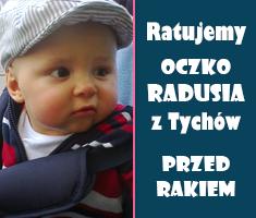Ratujemy oczko Radiusia z Tychów przed rakiem.