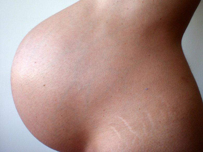 Białe bruzdy na ciele zwane rozstępami pojawiają się najczęściej w okresie dojrzewania i w ciąży (fot. foter. com)