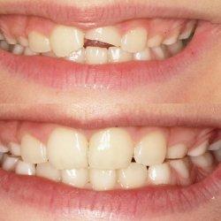 Ułamany ząb można dokleić. Wystarczy tylko zastosować się do wskazówek zawartych w poniższym tekście (fot. materiał prasowy Śmigiel Dental)