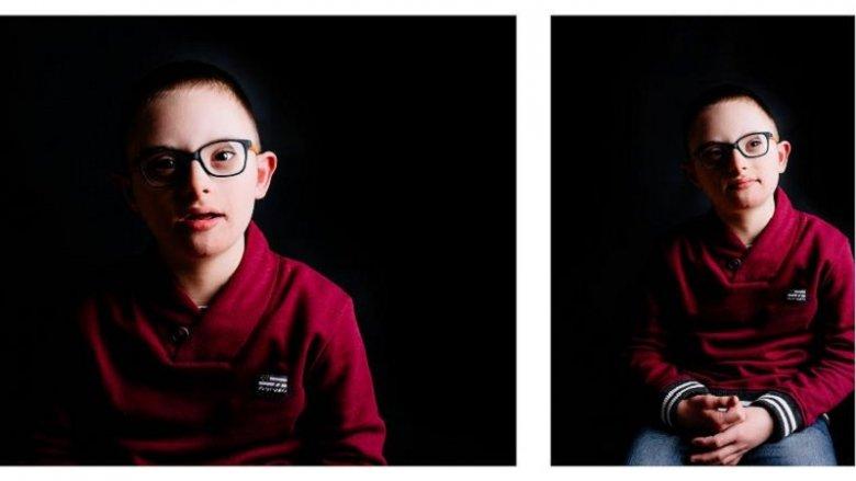 Fotografie powstały, aby dać wyraz tolerancji dla inności (fot. mat. organizatora)