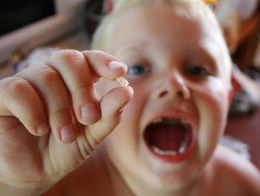 Zęby mleczne trzymają miejsce dla nowych, dlatego nie powinno się ich wyrywać, a leczyć. Najlepiej, kiedy same wypadają w swoim czasie (fot. sxc.hu)