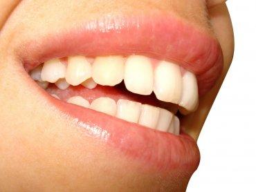 Śmiech odpręża, nastraja pozytywnie, integruje (fot. sxc.hu)